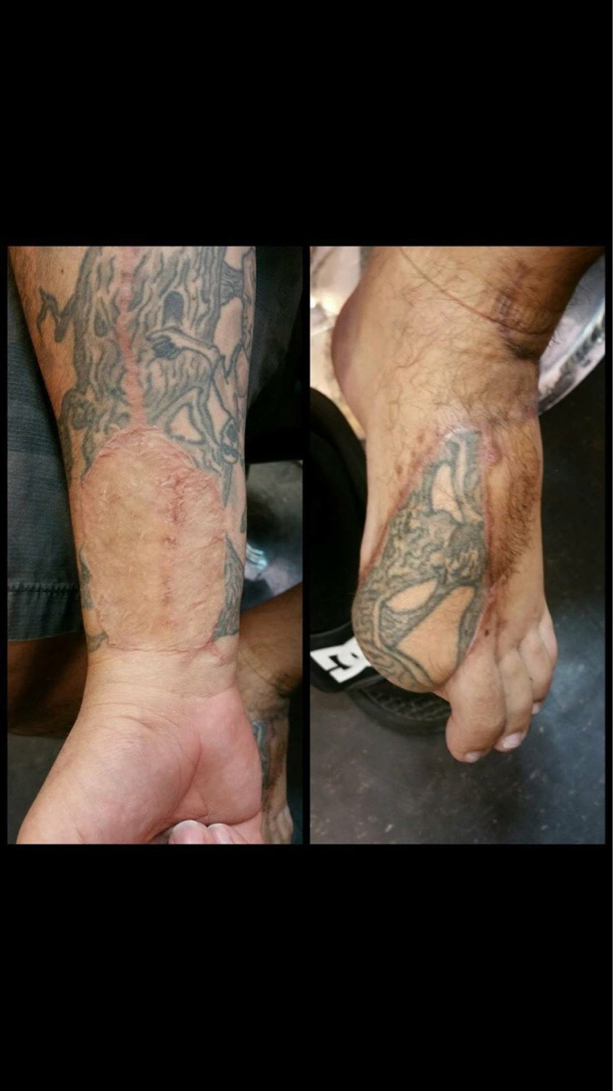 kaza geçiren adamın dövmesinin yer değiştirişi