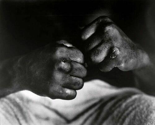 cooper ile dövüşünden sonra muhammed ali'nin elleri, 1966