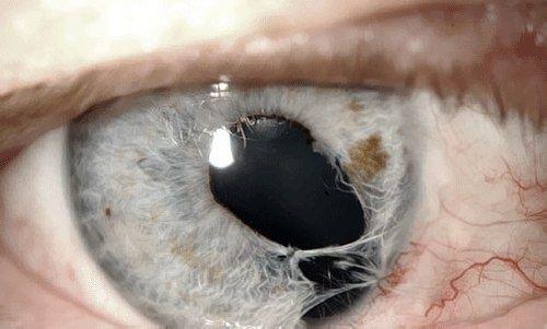 göz yırtılması