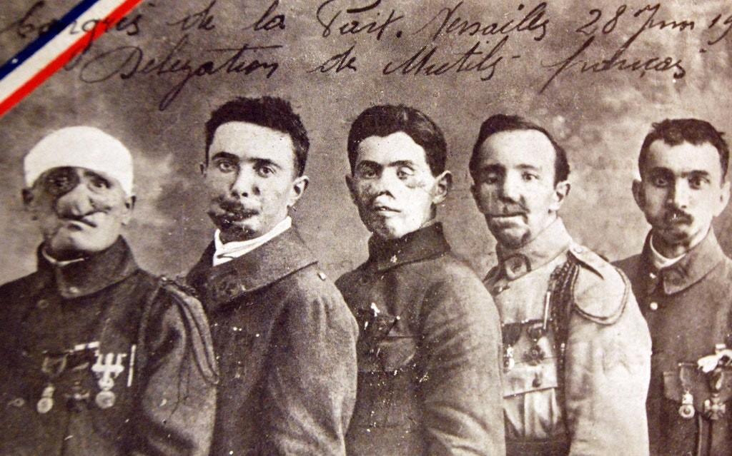 1919 :birinci dünya savaşı sırasında yaralanan askerler